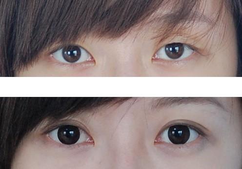 双眼皮手术需要多少钱